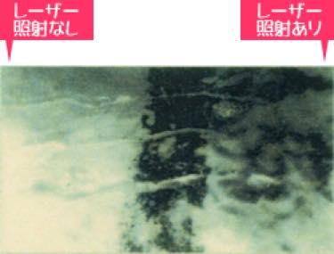 レーザーを照射した歯と何もしない歯の表面